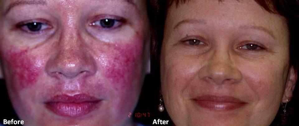 pilules acné oestrogenes pas cher