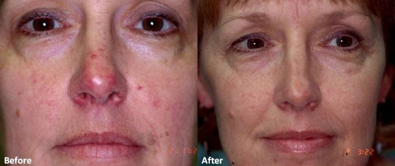 acne rosacea before after - DriverLayer Search Engine