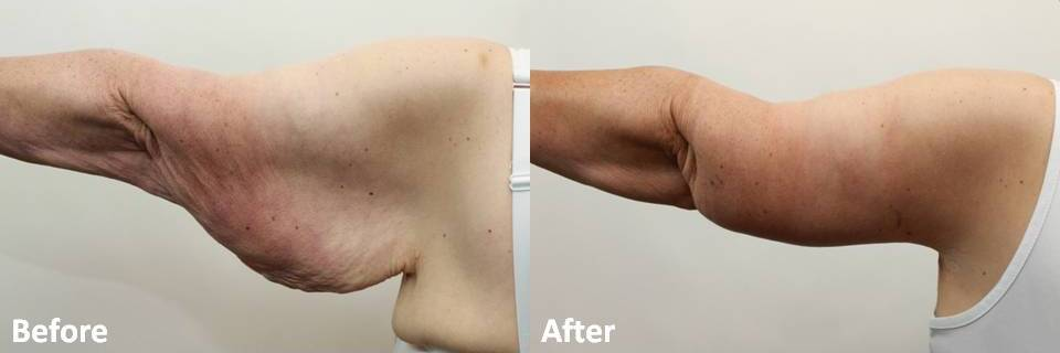 How Can Women Get Rid of Flabby Upper Arms? | Dr. Darm – Dr. Darm ...